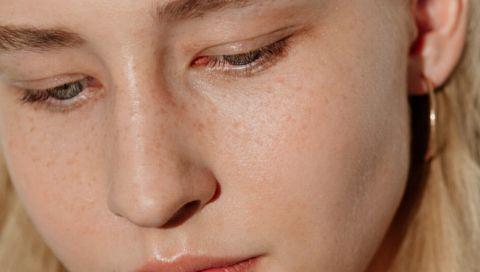 Niacinamid: So verbessert das Vitamin Ihr Hautbild
